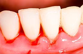 歯石 取り で 自分 歯石取りを自分でするのは安全? セルフケア方法あるの?